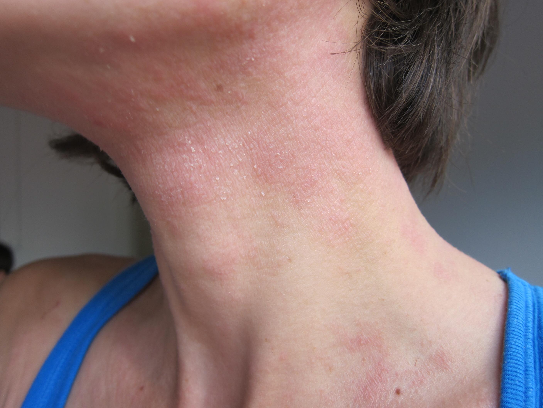 Oksolinovaya longuent du psoriasis